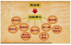<b>得高脂血症怎么办?如何改善高脂血症症状</b>