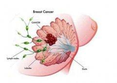 乳腺增生最好应该有效的进行调理